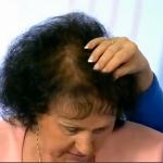 Причины выпадения волос и питание